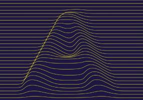 Appareil auditif Bordeaux réglage à distance 2