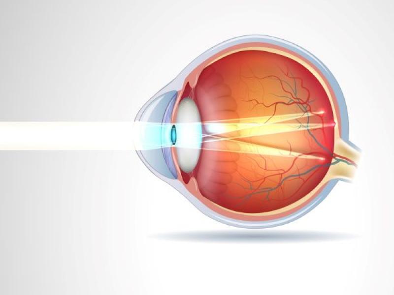Représentation de l'astigmatisme