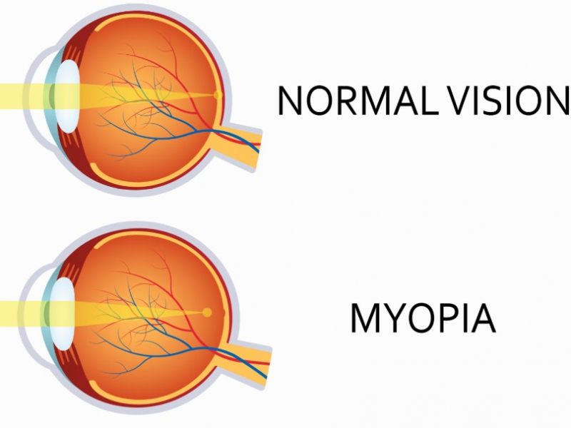Myopie-anatomie-IRIS&OCTAVE
