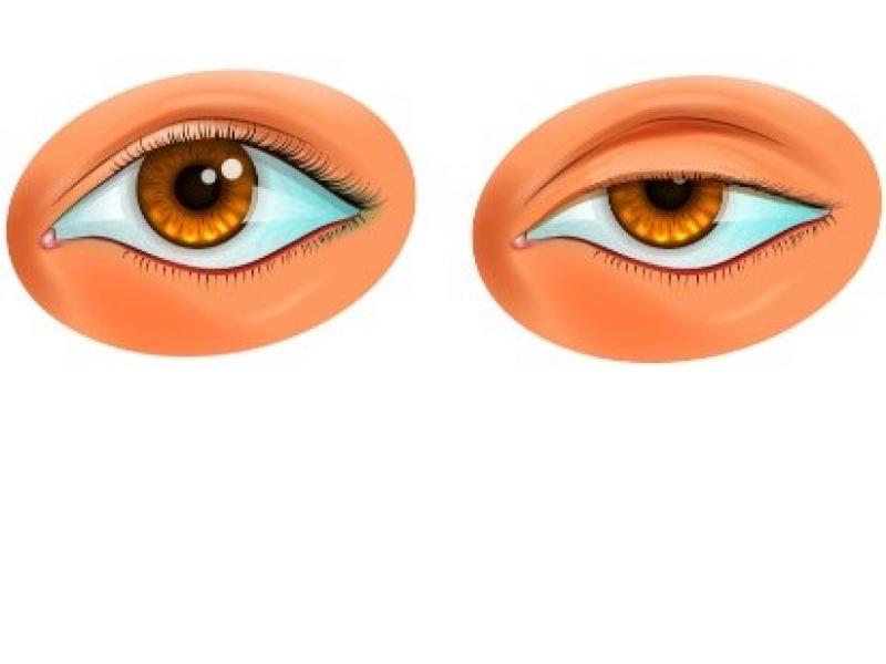 Chute des paupières et astigmatisme
