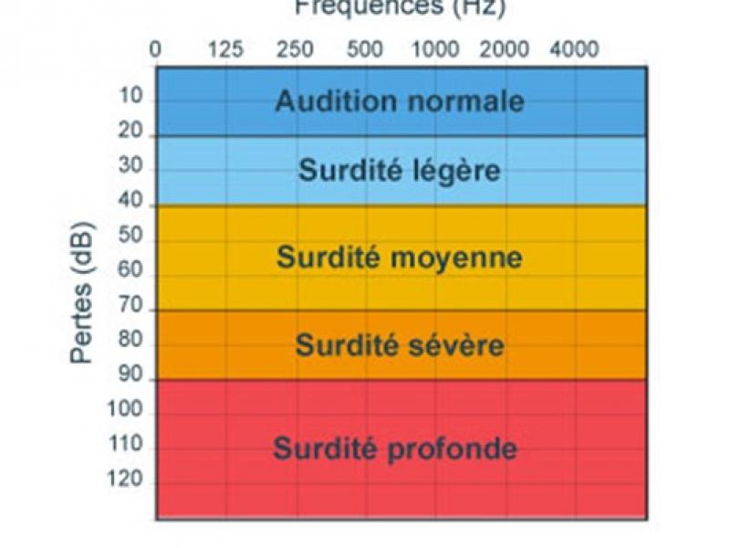 surdité-degré-IRIS&OCTAVE 3
